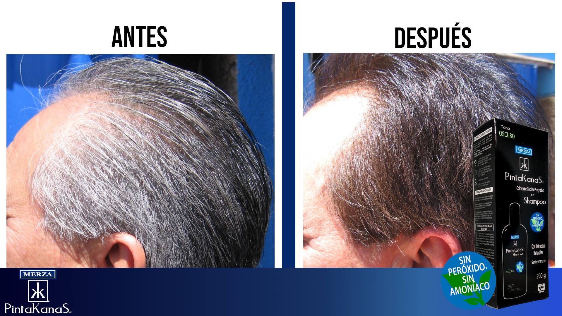 antes y despues de usar shampoo pintakanas